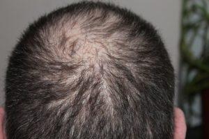 trockene kopfhaut haarausfall